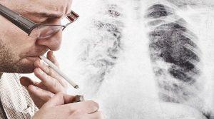 Arrêt du tabac par hypnose : arrêter de fumer définitivement